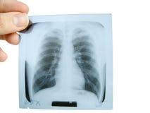 X - ray Royalty Free Stock Photos