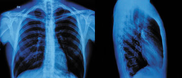 X-Ray. Image Of Human Chest front view and lateral view Royalty Free Stock Photography