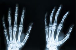 X-Ray. Image of human hands Stock Images