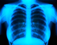 X-ray. Image Of Human Chest for a medical diagnosis Stock Photography