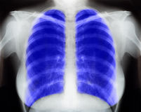 X-ray. Image Of Human Chest for a medical diagnosis Stock Photos