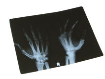 X-Ray Royalty Free Stock Image