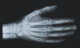 X-ray. Hand royalty free stock photo