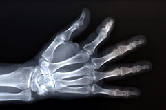 X-ray. Hand x-ray Stock Photos