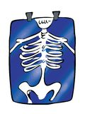 X-ray. Cartoon illustration of an x-ray Royalty Free Stock Image