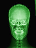 X-ray of Alien's skull. Royalty Free Stock Photo