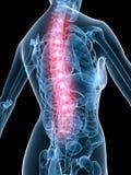 X-ray anatomy-backache Royalty Free Stock Photography