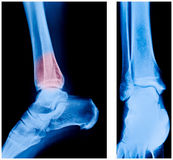 X-ray of the ankle Stock Photo