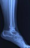 X-ray ankle joint. Royalty Free Stock Image