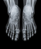 X Ray of  Ankle joint front view. Royalty Free Stock Photo