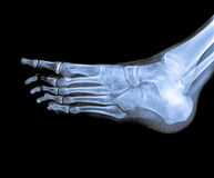 X Ray of  Ankle joint side view. Royalty Free Stock Images