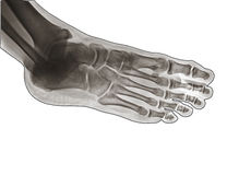 X Ray of  Ankle joint side view. Stock Photo