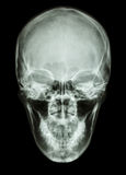 X-ray asian skull (Thai people). On black background royalty free stock image