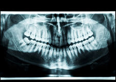 X-ray atm Stock Images