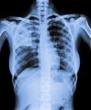 X Ray av den infekterade bröstkorgen Arkivfoton