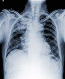 X Ray av den infekterade bröstkorgen Royaltyfria Foton