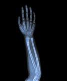 X Ray av handen Arkivbilder