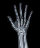 X Ray av handen Arkivfoton