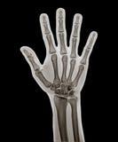 X Ray av handen Royaltyfria Bilder