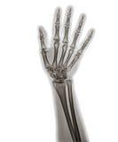 X Ray av handen Arkivfoto