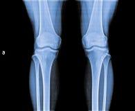 X Ray av knäleden Royaltyfria Bilder