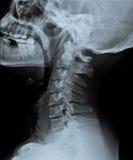 X Ray av sidosikten av skallen Arkivbilder