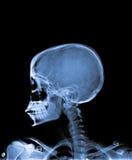 X Ray av skallen Fotografering för Bildbyråer
