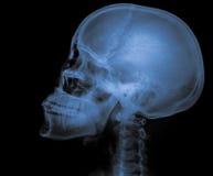 X Ray av skallen Royaltyfria Foton