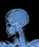 X Ray av skallen Arkivfoton