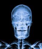 X Ray av skallen Royaltyfri Foto