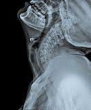 X Ray av skallen med sidan av halsen Royaltyfri Fotografi