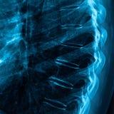 X-ray of backbone Royalty Free Stock Photo