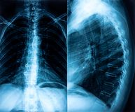 X-ray of backbone Royalty Free Stock Photography