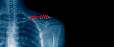 x-ray beeld en bannerontwerp van schouder in blauwe toon royalty-vrije stock foto's