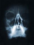 X-ray beeld van de schedel Stock Fotografie