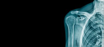 X-ray beeld van de schouderbanner stock foto's