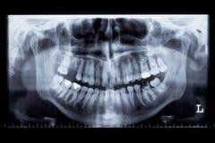 X-ray beeld van het panorama van een menselijke kaak Royalty-vrije Stock Afbeelding