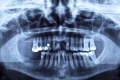X-ray beeld van het panorama van een menselijke kaak Stock Foto
