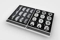 X-Ray Boards Stock Photos
