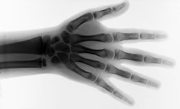 X RAY BODY PARTS. An x-ray pic of an hand with fingers, inverse rendering stock photos