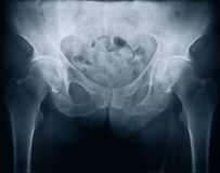 X-ray with bolt Stock Photography