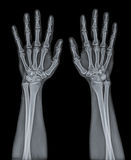 X Ray of both hand. Royalty Free Stock Images