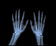 X Ray of  both hand. Royalty Free Stock Photo