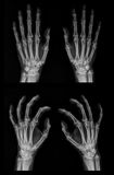X-ray of both hands. Digital x-ray image of both hands in two projections with some radiographical findings Stock Images