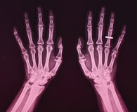 X ray of both hands, female. Normal x ray of both hands, female - wedding ring on the right hand Royalty Free Stock Images