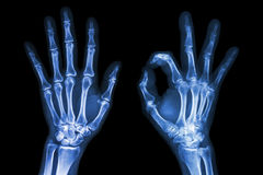 X-ray both hands with OK sign royalty free stock image