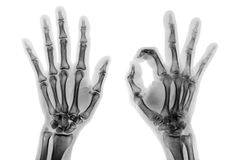 X-ray both hands with OK sign. X - ray both hands with OK sign royalty free stock photo