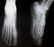 X-ray of both human feet Royalty Free Stock Photo