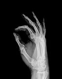 X-ray. Of both human hand (OK stock photo
