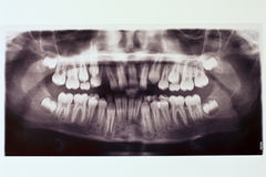 X-ray of boy's teeth Stock Photos